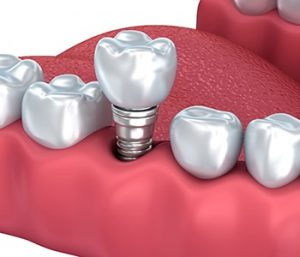 Care for my dental implant