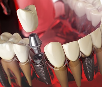 Teeth Implant Dentist in Quincy