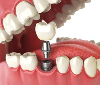 Patients Find That Dental Implants Are A Great Fit For Their Specific Dental Needs