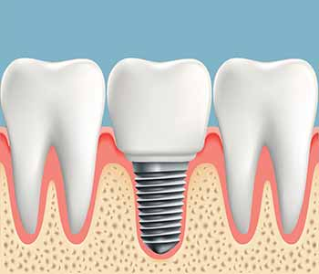 Dr. Stephen Matarazzo describes a dental implant as a titanium tooth replacement that is placed into the bone of the jaw and stimulates the process of bone growth called osseointegration.