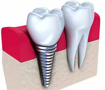 Dental implants from your Quincy Dentist