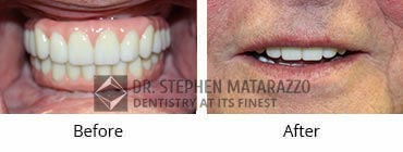 Smile Make-Over Before and After Image - 10