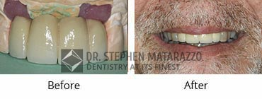 Implant Dentistry Before and After Image - 11