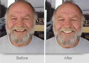 Quincy Dentist - Denture Before and After Image - 01