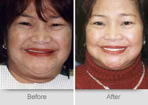 Quincy Dentist - Denture Before and After Image - 09