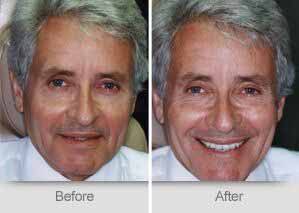 Quincy Dentist - Denture Before and After Image - 11
