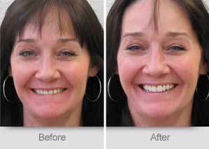 Quincy Dentist - Denture Before and After Image - 12