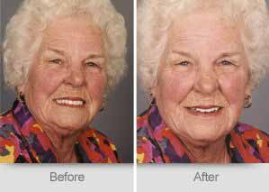 Quincy Dentist - Denture Before and After Image - 13