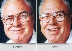 Quincy Dentist - Denture Before and After Image - 14