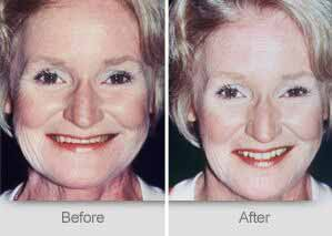 Quincy Dentist - Denture Before and After Image - 15