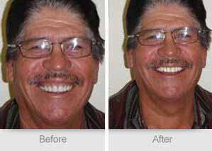 Quincy Dentist - Denture Before and After Image - 16