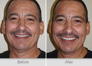 Quincy Dentist - Denture Before and After Image - 17