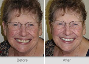 Quincy Dentist - Denture Before and After Image - 18