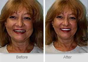 Quincy Dentist - Denture Before and After Image - 19