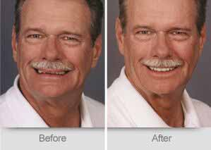 Quincy Dentist - Denture Before and After Image - 02