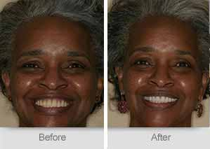 Quincy Dentist - Denture Before and After Image - 20
