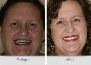 Quincy Dentist - Denture Before and After Image - 21