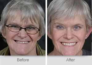 Quincy Dentist - Denture Before and After Image - 25