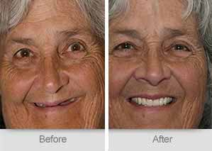 Quincy Dentist - Denture Before and After Image - 27