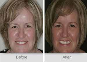 Quincy Dentist - Denture Before and After Image - 28