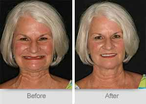 Quincy Dentist - Denture Before and After Image - 29