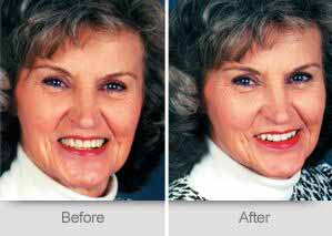 Quincy Dentist - Denture Before and After Image - 03