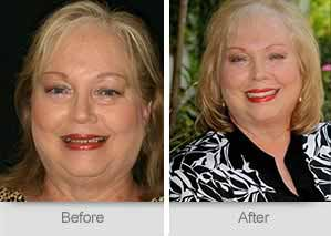 Quincy Dentist - Denture Before and After Image - 30