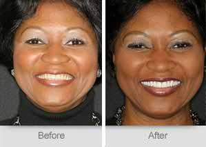 Quincy Dentist - Denture Before and After Image - 31