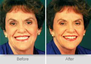 Quincy Dentist - Denture Before and After Image - 04