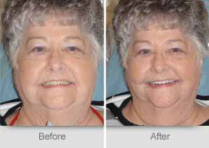 Quincy Dentist - Denture Before and After Image - 06