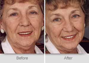 Quincy Dentist - Denture Before and After Image - 07