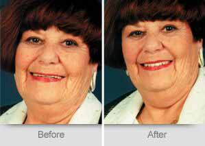 Quincy Dentist - Denture Before and After Image - 08