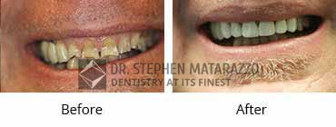 Implant Dentistry Before and After Image - 021