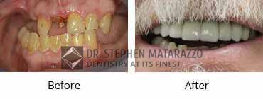Implant Dentistry Before and After Image - 03