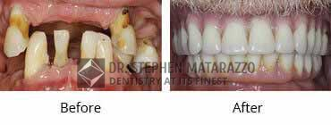 Implant Dentistry Before and After Image - 04