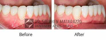 Full Mouth Rehabilitation Before  After Image - 10
