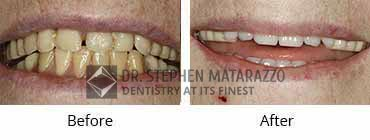 Full Mouth Restoration, Quincy MA - Before and After Image 32