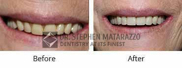 Full Mouth Restoration, Quincy MA - Before and After Image 34