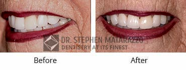 Full Mouth Restoration, Quincy MA - Before and After Image 38