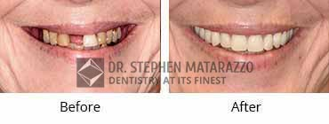 Full Dentures, Quincy MA - Before And After Image 31