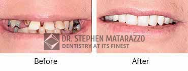 Full Dentures, Quincy MA - Before And After Image 32