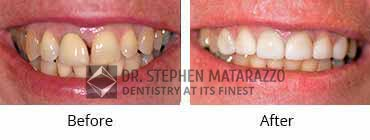 Full Dentures, Quincy MA - Before And After Image 33
