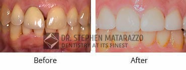 Full Dentures, Quincy MA - Before And After Image 34