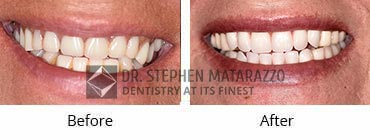 Full Denture Before and After Image - 35