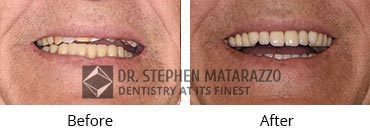 Full Denture Before and After Image -36