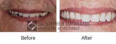 Full Denture Before and After Image - 04