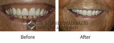 Full Denture Before and After Image - 05