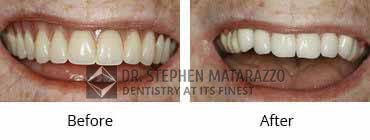 Full Denture Before and After Image - 06