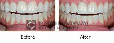 Full Denture Before and After Image - 07