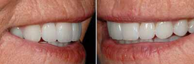 Full Mouth Rehabilitation Procedure, Quincy